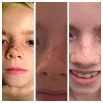 neus sterre na 2 jaar